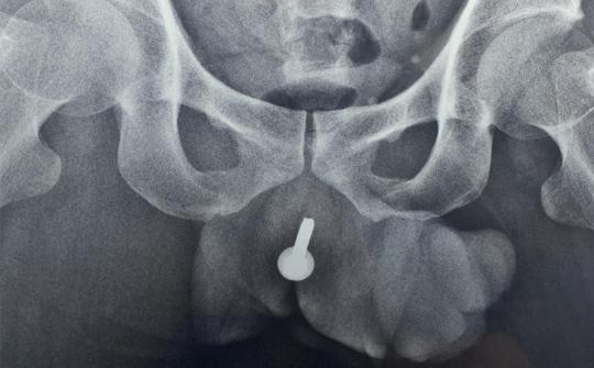 Phẫu thuật bán khẩn lấy dị vật dài 6cm khỏi niệu đạo người đàn ông