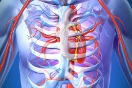 Nội khoa - Tim mạch can thiệp - Can thiệp nội mạch